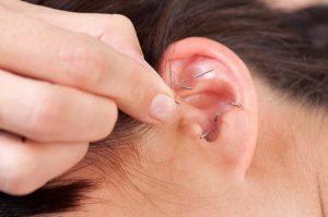 acupuncture-auriculotherapie